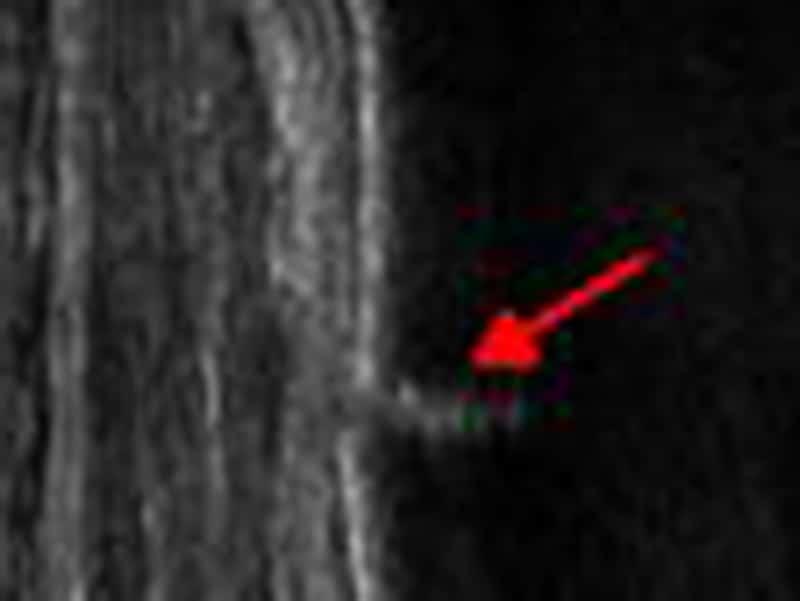 Ultraschall bei Knochenbrüchen